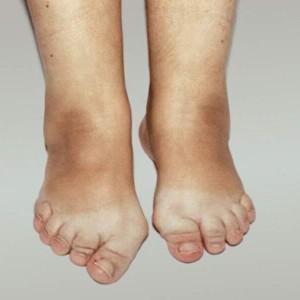 Псориатическая артропатия: описание заболевания и лечение