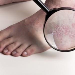 Лечение ладонно-подошвенного псориаза. отзывы