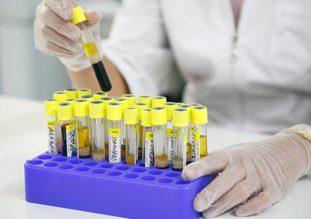 Контрольное исследование фекалий пациента проводят через 3 и 6 месяцев после курса лечения