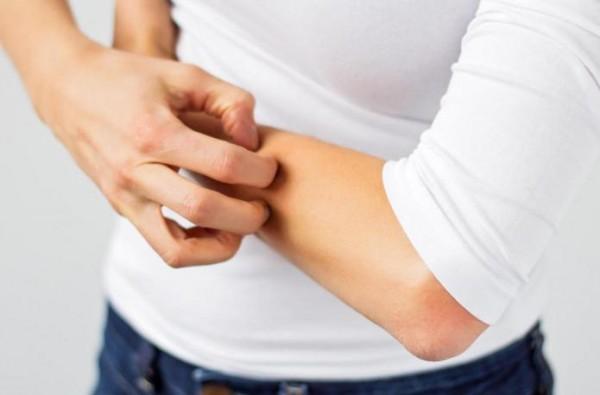 Способы лечения нейродермита на руках, лице и половых органах