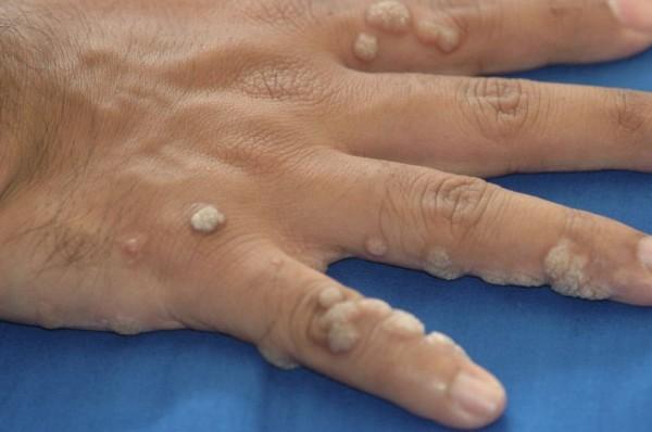 Грамотное избавление от наростов на нежной коже