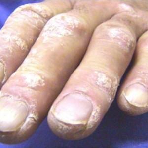 Заразна ли экзема: виды заболевания и методы лечения