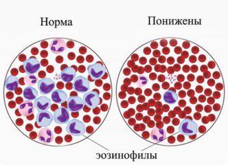 Эозинофилия