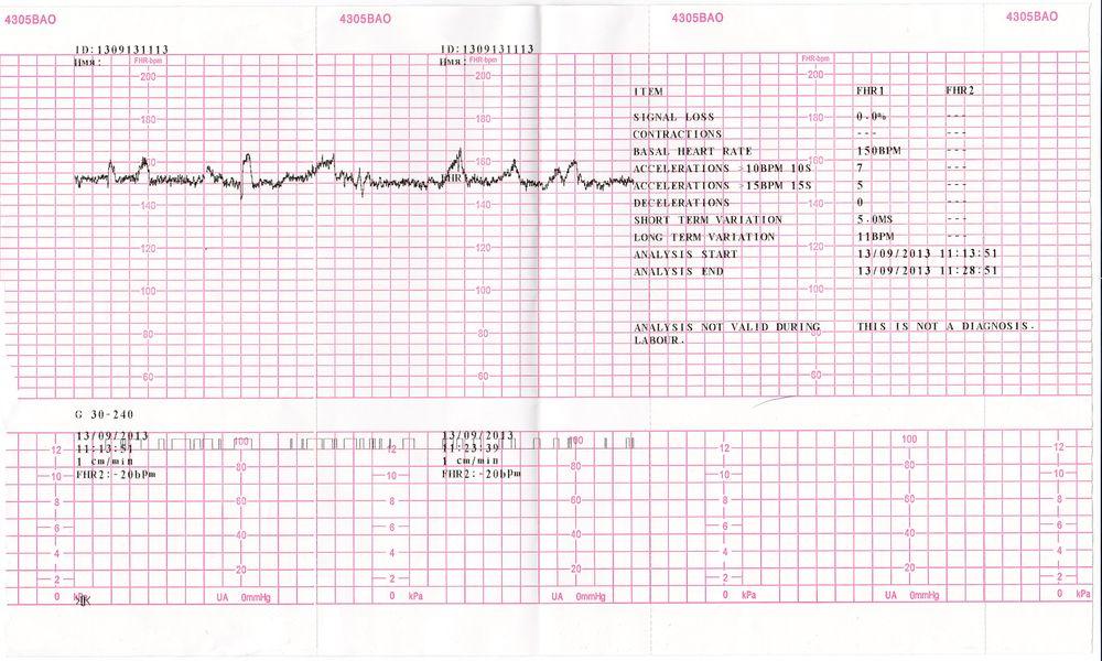 Расшифровка кардиотокографии КТГ плода при беременности