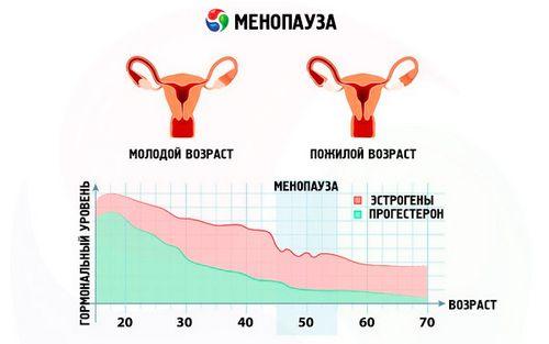 Симптомы и лечение раннего климакса у женщин менопауза