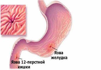 Гвоздика – мощное оружие против паразитов