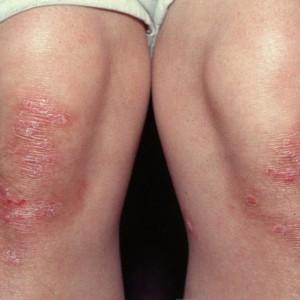 Псориаз: симптомы, причины возникновения и лечение