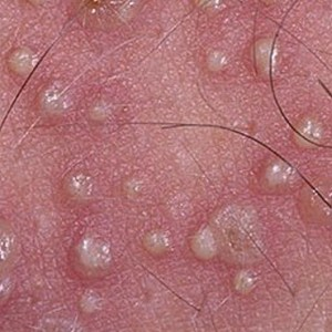 Лишай простой пузырьковый: симптомы и лечение