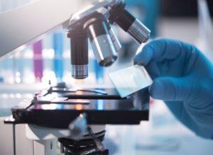 Если человек инфицирован, то цисты очень часто выявляются уже при первом лабораторном исследовании кала