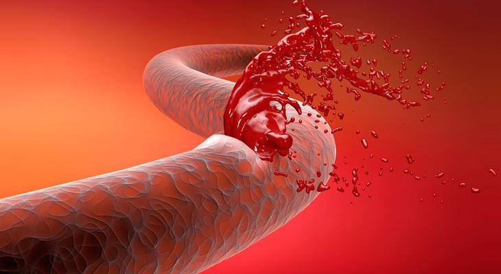 Разрыв артерии