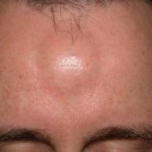 Жировики на лице: причины возникновения
