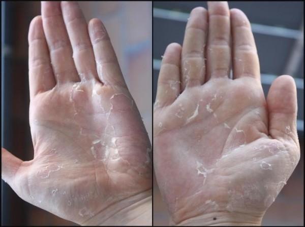 Шелушение кожи на ладонях: причины и профилактика