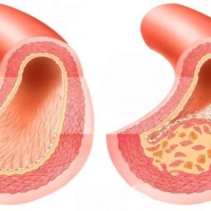 Специфические особенности парапсориаза и подходы к его лечению