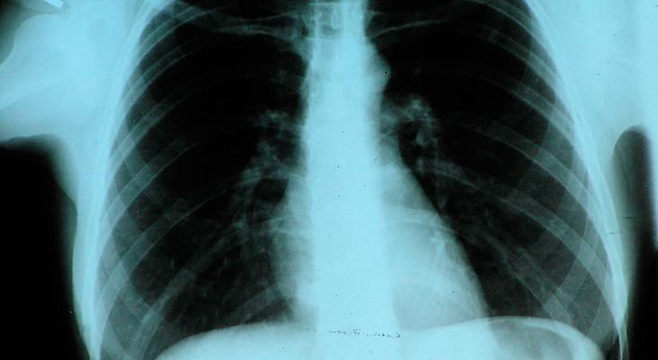 Рентген курильщика