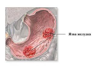 Лечебные свойства полыни горькой в борьбе с паразитами