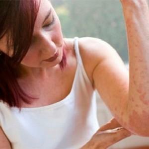 Зудящий дерматоз: определение, формы и лечение