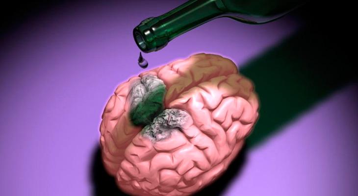 Поражение мозна алкоголем