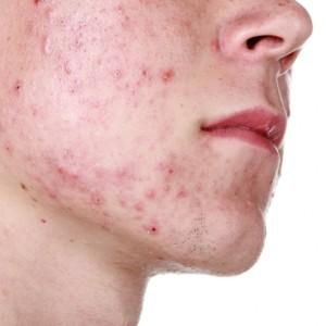 Что такое демодекс на лице? Основные симптомы