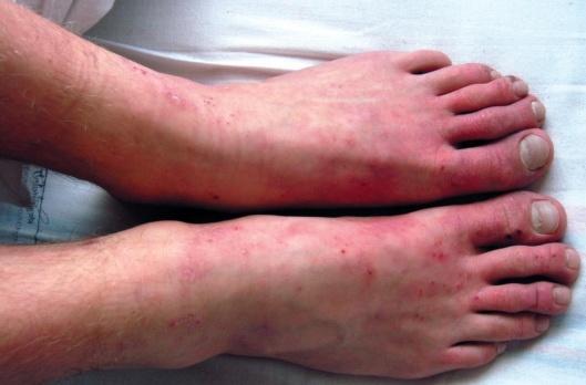 Симптомы холодового дерматита и его отличительные признаки
