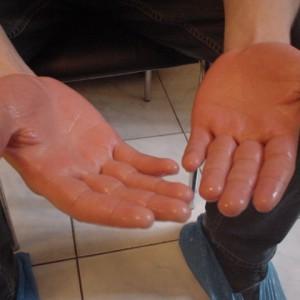 Сложности при лечении экземы на ладонях