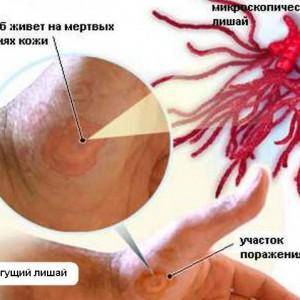 Стригущий лишай у человека: симптомы и способы лечения