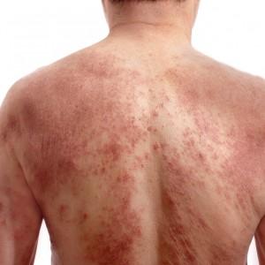 Симптомы опоясывающего герпеса и способы лечения заболевания