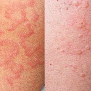 Аллергия. Как она возникает и как ее лечить