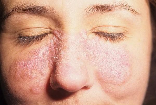О чём говорят красные шелушащиеся пятна на лице?