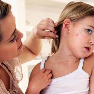 Особенности детской чесотки, методы ее лечения и профилактики