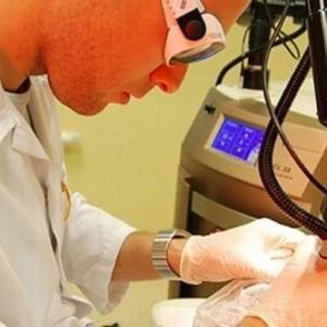 Причины появления кератопапиллом: методы лечения, фото
