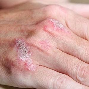 Источники заражения псориазом и опасность его осложнений