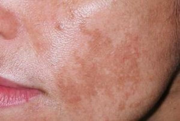 Коричневые пятна на лице: причины и как избавиться от них