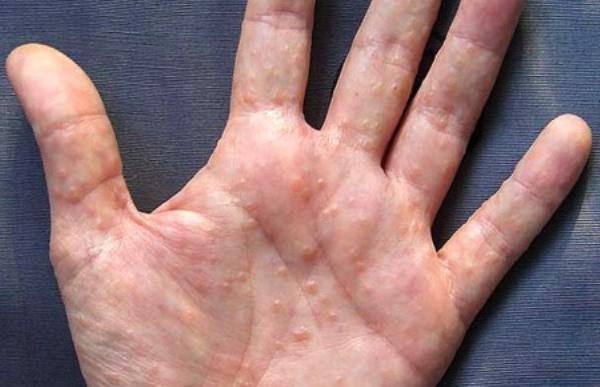 Болезнь кистей рук: как лечить дисгидротическую экзему