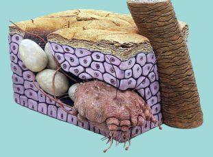 Фото: чесоточный клещ в коже