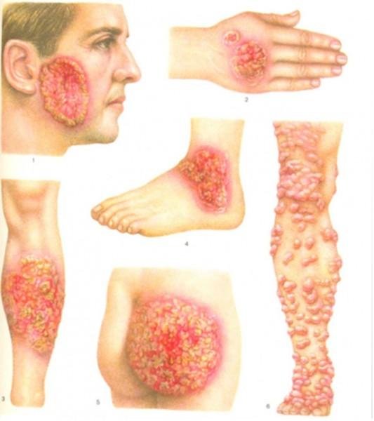 Грибок на теле: насколько опасен и как с ним справиться?