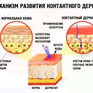 Как побороть аллергический дерматит у взрослых?