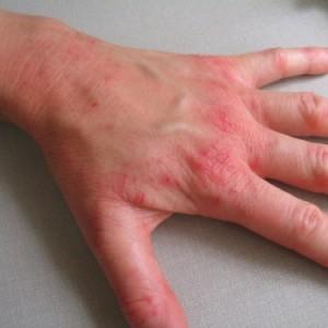 Заболевания кожи рук виды и лечение