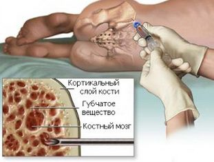 Фото: пункция костного мозга