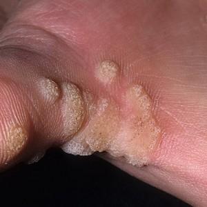 Возникновение бородавок на пальцах рук, лечение