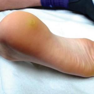 Бородавка на ступне: причины появления, лечение