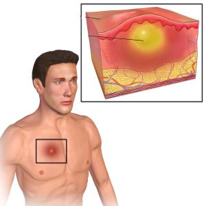 Причина появления фурункула на теле, лечение