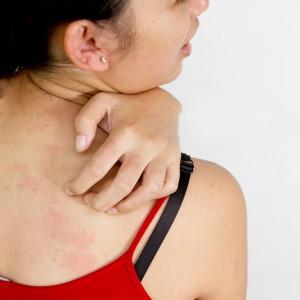 Дермографическая крапивница: симптомы, диагностика и лечение