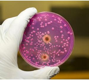 Признаки появления грибков в организме человека и их лечение