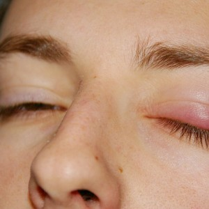 Когда защита глаз дает сбой или о чём говорят зудящие веки