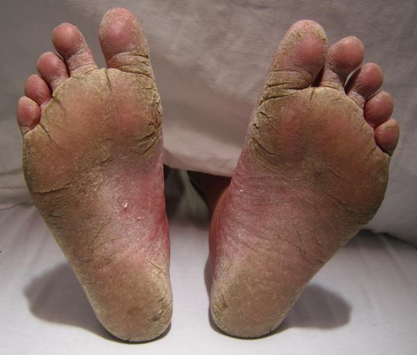 Псориаз на ногах: как облегчить течение болезни