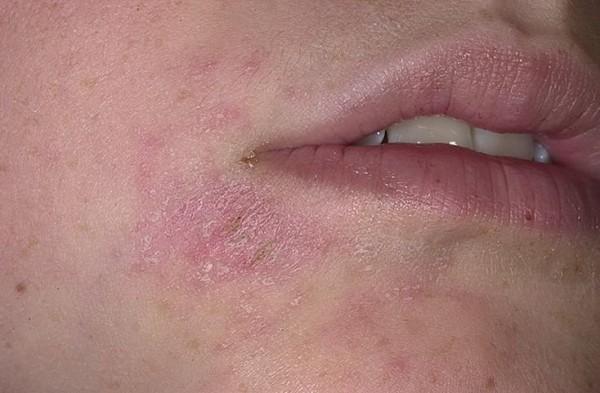 Лечение псориаза начальной стадии. Фото