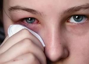Если чешутся веки: причины и способы лечения