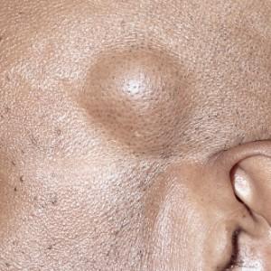 Появление жировика: причины, осложнения, фото воспаления