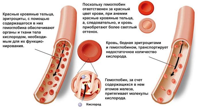 Низкий гемоглобин и степени анемии при беременности