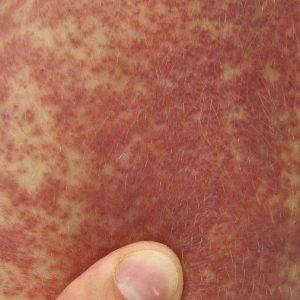 Симптомы васкулита кожных покровов, фото